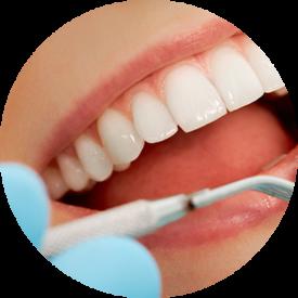 image-tandarts